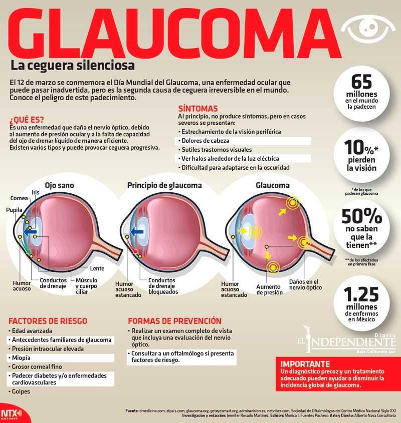GLAUCOMO ENFERMEDAD DE LA VISTA OCULAR