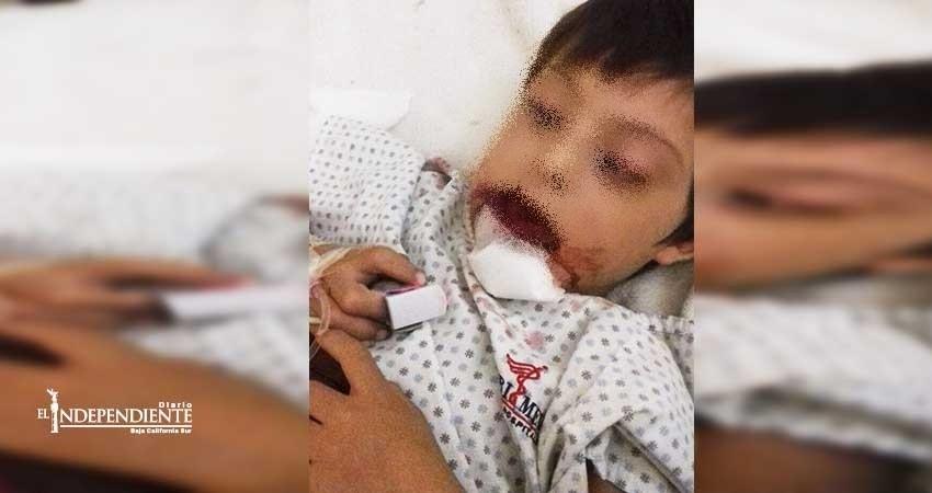 Salvatierra tardará 20 díasen atender a niño Downcon mandíbula fracturada