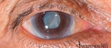 Glaucoma, primera causa de ceguera no reversible en México