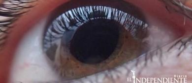 Un 80% de casos de glaucoma son previsibles y evitables: UNAM