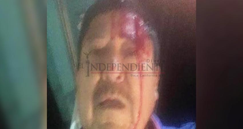 Vehículo que utilizaron para agredir a periodista es de un empleado del Ayto de Comondú